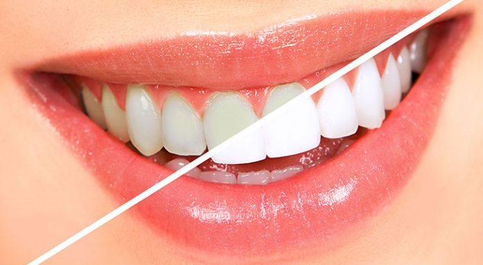 evde en kolay ve etkili diş beyazlatma yöntemleri