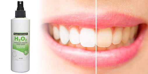 hidrojen peroksit ile diş beyazlatma