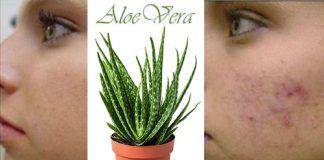 aloe vera sivilce için nasıl kullanılır
