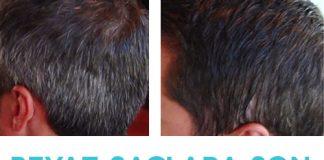 saç beyazlamasını önleyen şampuan