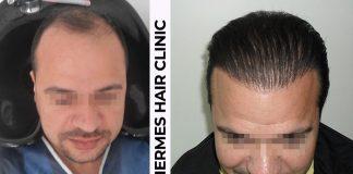 Hermes Hair Clinic Saç ekimi