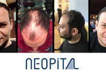 Neopital saç ekimi sonucu