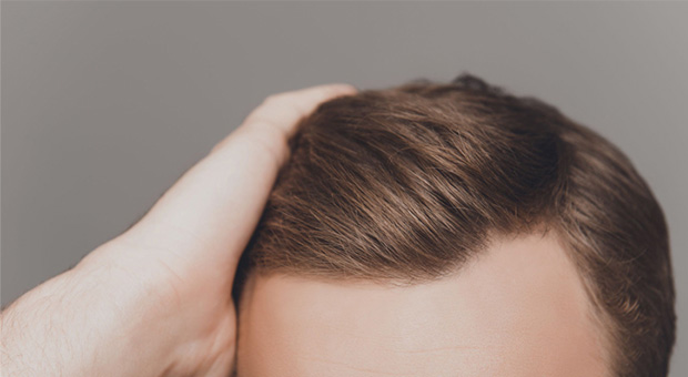 saç ekimi fiyatları 2019