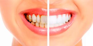feridun kunak diş taşı temizliği
