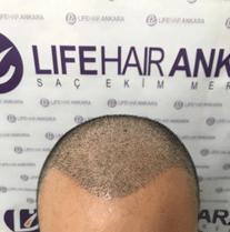 life hair ankara saç ekim merkezi