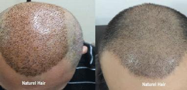 naturel hair saç ekim merkezi ankara